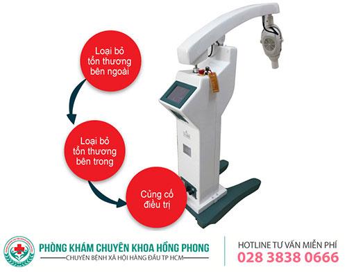 Điều trị sùi mào gà bằng phương pháp ALA - PDT mang lại hiệu quả cao