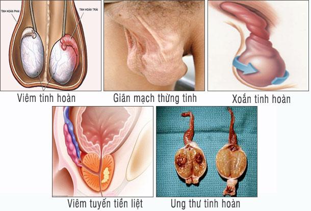 Đau tinh hoàn là triệu chứng của nhiều bệnh lý nguy hiểm (ảnh minh họa)