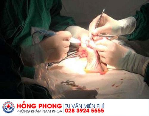 Phẫu thuật gắn bi vào dương vật tại Phòng Khám Đa Khoa Hồng Phong