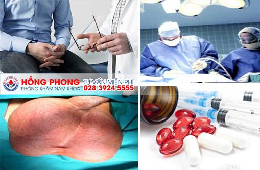 Điều trị đau tinh hoàn bằng hiệu quả bằng nhiều phương pháp khác nhau (ảnh minh họa).
