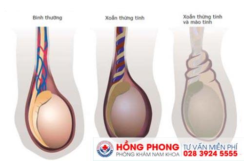 Xoắn tinh hoàn là một trong những nguyên nhân gây đau tinh hoàn (ảnh minh họa).