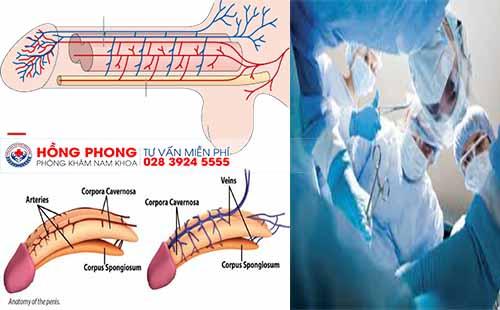 Điều trị xuất tinh sớm hiệu quả bằng các phương pháp hiện đại (ảnh minh họa).