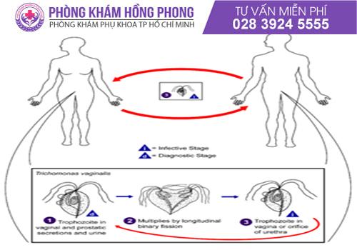 Bệnh viêm âm đạo do Trichomonas lây truyền chủ yếu qua đường tình dục
