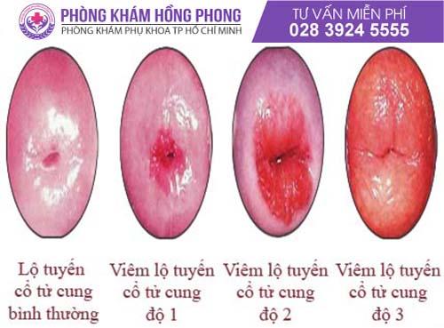 Bệnh viêm lộ tuyến tử cung có 3 cấp độ bệnh khác nhau