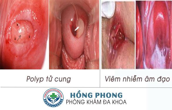 Nguyên nhân phổ biến gây hết kinh lại ra máu (ảnh minh họa)